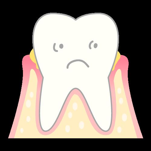 歯周炎の歯肉