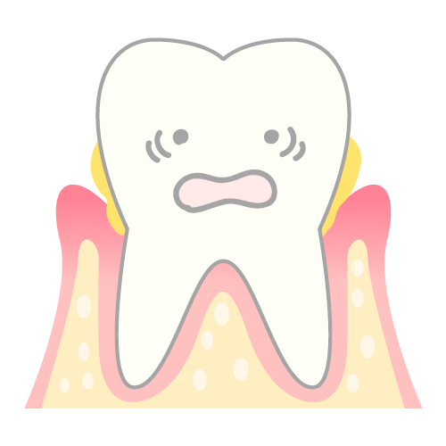 軽度歯周炎の歯肉