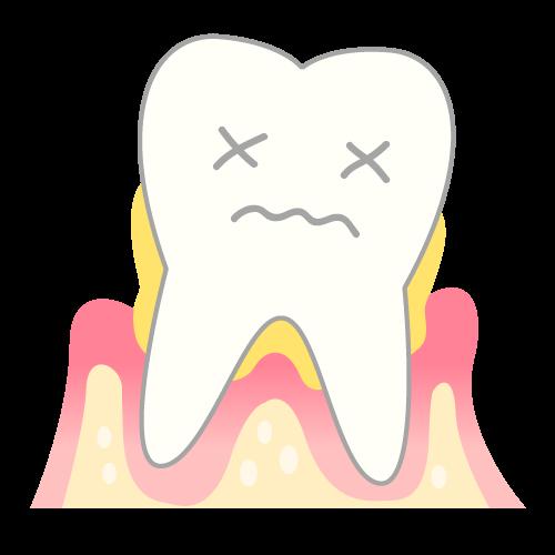 重度歯周炎の歯肉