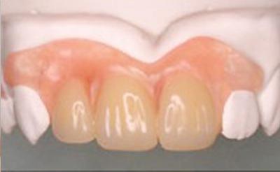 新しい入れ歯